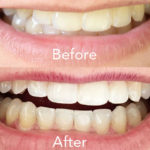Home Teeth Whitening: How I Got Whiter Teeth Fast