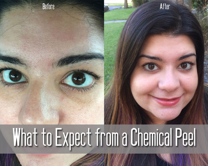 What to Expect from a Chemical Peel