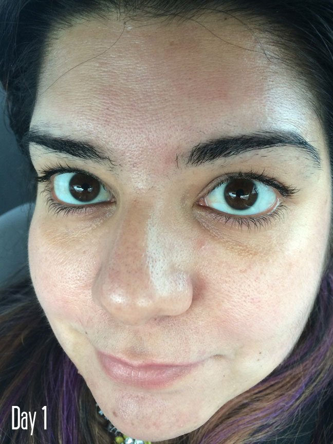 What to expect from a chemical skin peel