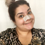 Eliminate Blackheads Once and for All with These Tips!